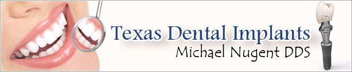 Texas Dental Implants