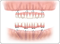 teeth in a day all on 4 dental implants