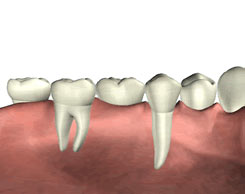 Family Dental Implant Dentist La Porte Texas