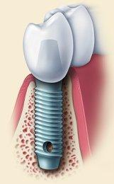 Deer Park Immediate Dental Implant