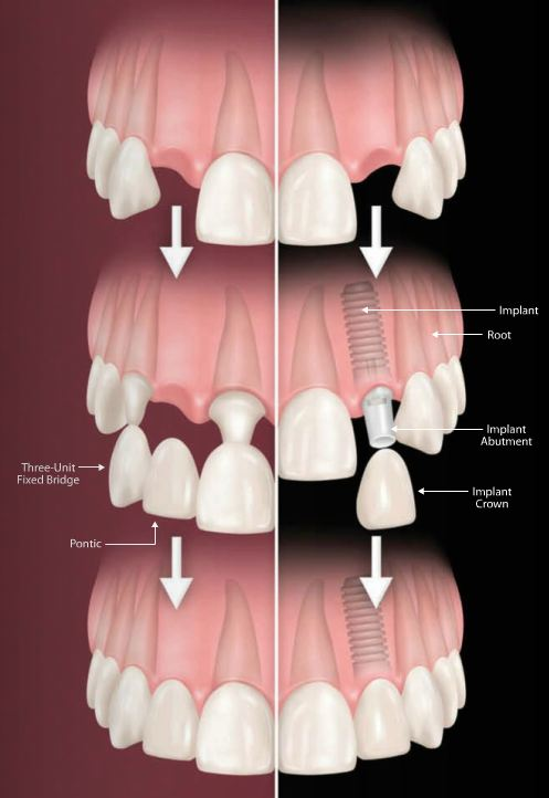 Cosmetic Implant Dentistry La Porte Texas