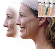 Deer Park Texas Cosmetic Dental Implants