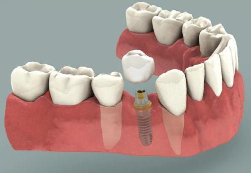 Dental Implant Crown Pasadena Texas