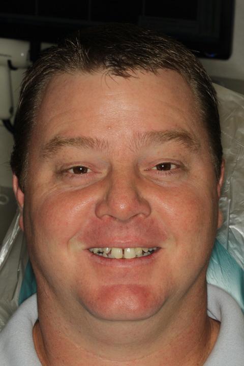 Pasadena TX Cosmetic Dental Implants