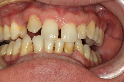 Deer Park TX Cosmetic Dental Implants