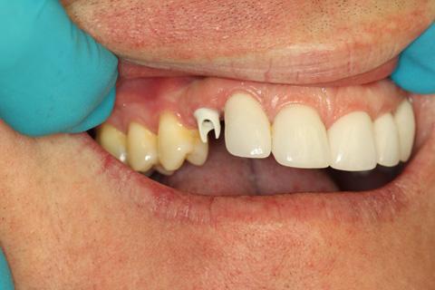 La Porte TX Cosmetic Dental Implants
