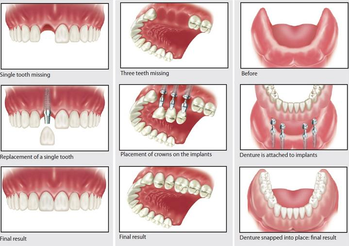 Friendswood Dental Implant Dentistry