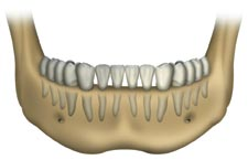 Dental Implant Dentist Deer Park Texas