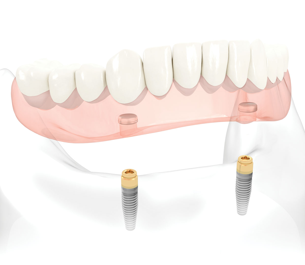 Friendswood Texas Cosmetic Dental Implant
