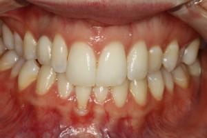 Pasadena Cosmetic Dental Implants