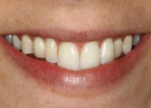 Cosmetic Implant Dentist Deer Park Texas