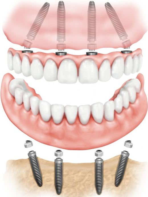All on Four Dental Implant Dentist