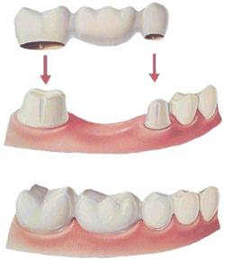 La Porte Dental Implant Cosmetic Dentist