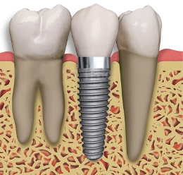 Deer Park Texas Cosmetic Implant Dentist