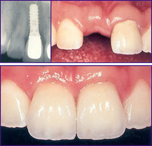 Implant Dentistry La Porte TX
