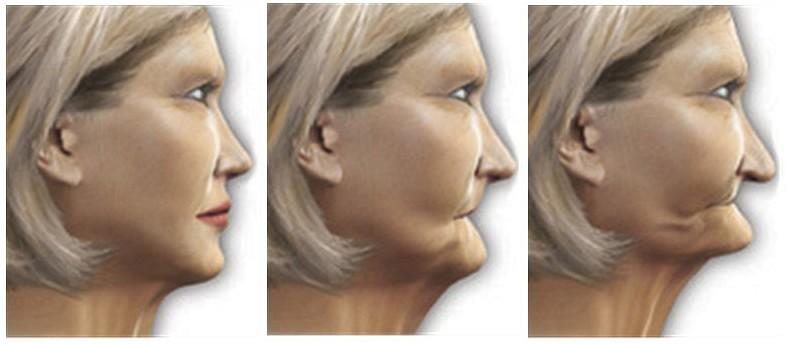 Deer Park Texas Cosmetic Dental Implant Dentist
