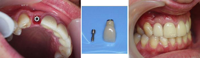 Pasadena Texas Immediate Dental Implant