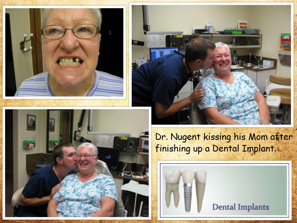 Dental Implants for your family.