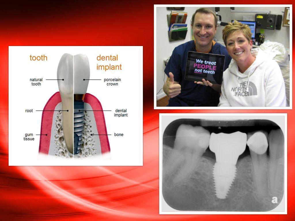 Deer Park, Texas: Dental Implant