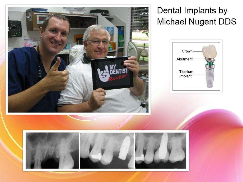 Dental Implants in Pasdaena Texas