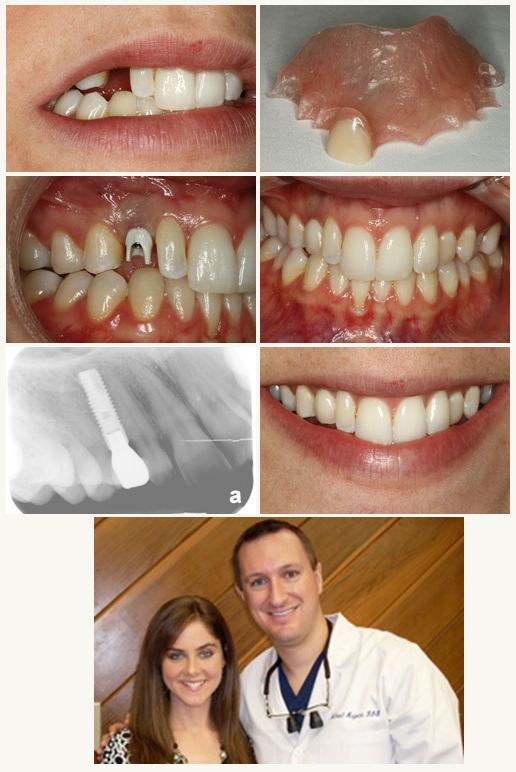 Michael Nugent DDS Dental Implant Dentist Pasadena Texas